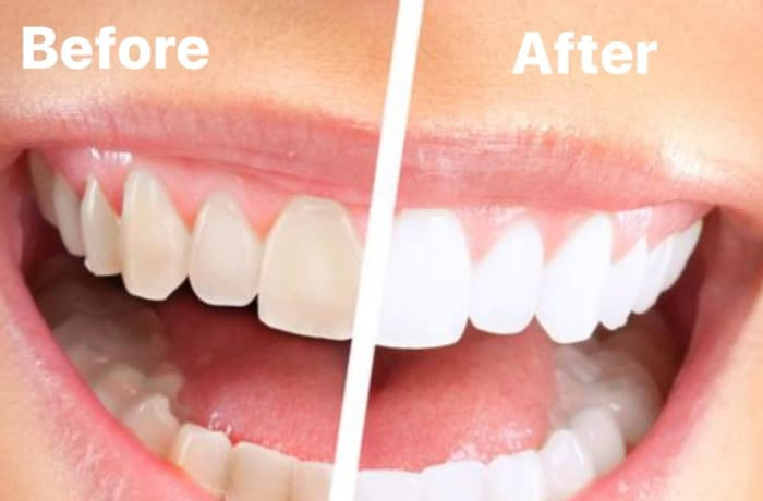 Improve your smile with Spa-Dent teeth whitening image