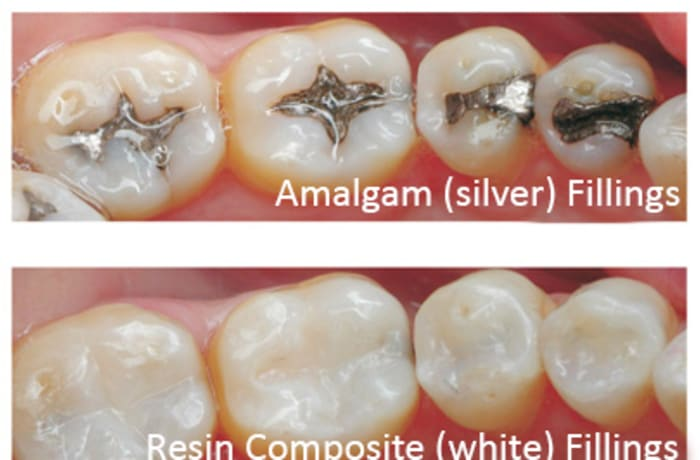 Fillings and root canals image