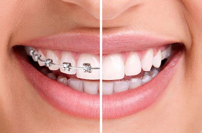 Incognito™ braces