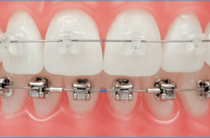 Damon braces image