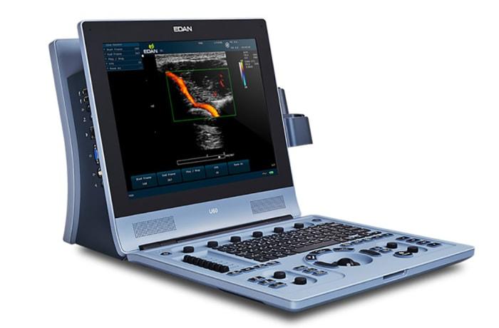 U60 Ultrasound System image