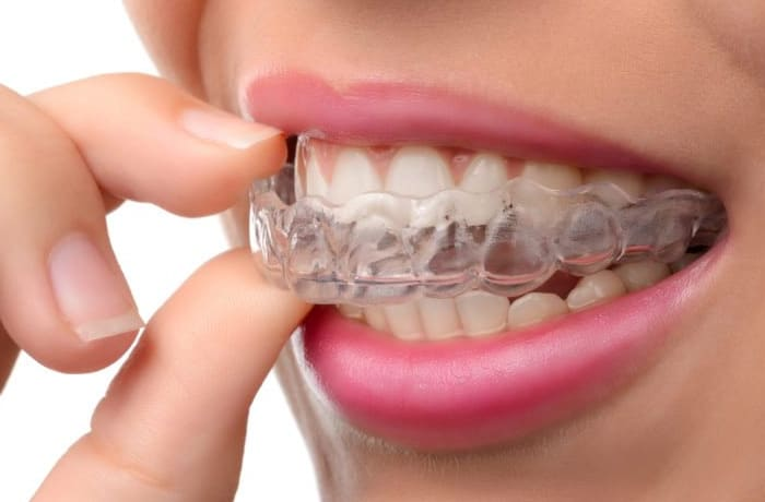 Invisalign and braces  - 3