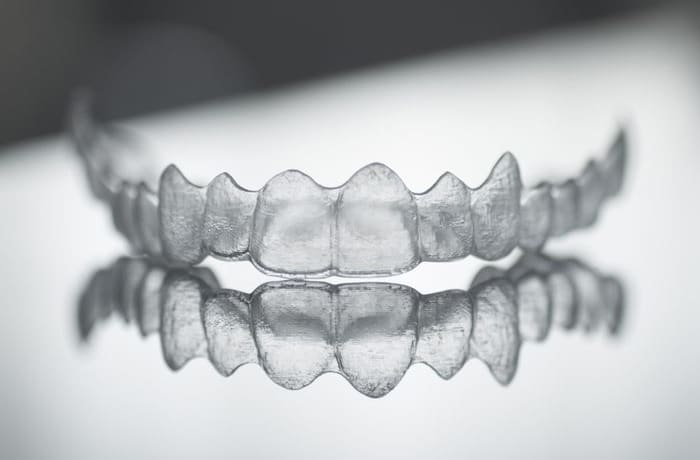 Invisalign and braces  - 2