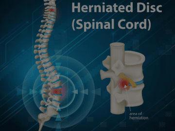 Slip Disc or Herniated Disc