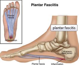 Planter Fasciitis