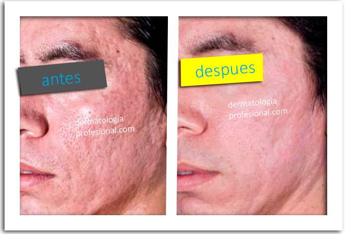 tipos de cicatrices en la cara