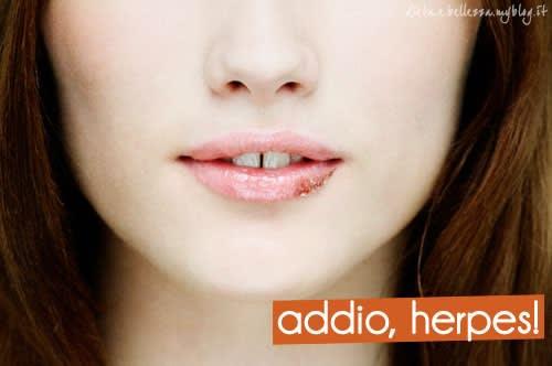 Herpes Labiale: Cause, Sintomi e Rimedi per Dire Addio all'Herpes