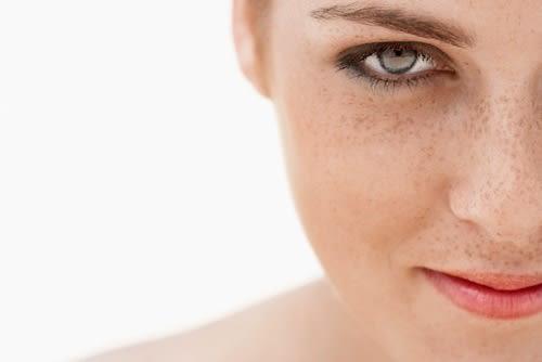 Macchie Scure sul Viso? 5 Regole di Bellezza per Prevenirle e Curarle
