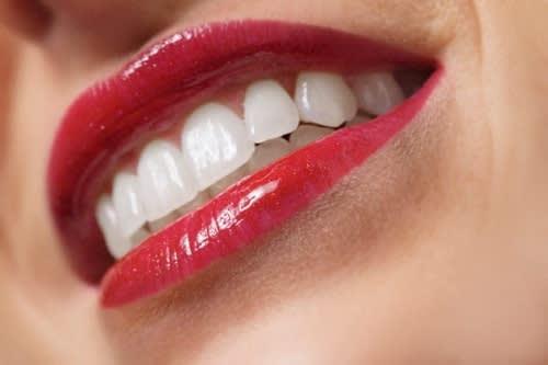 Consigli Utili per Denti Bianchi e Sorriso Perfetto
