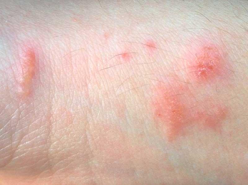 Dermatities