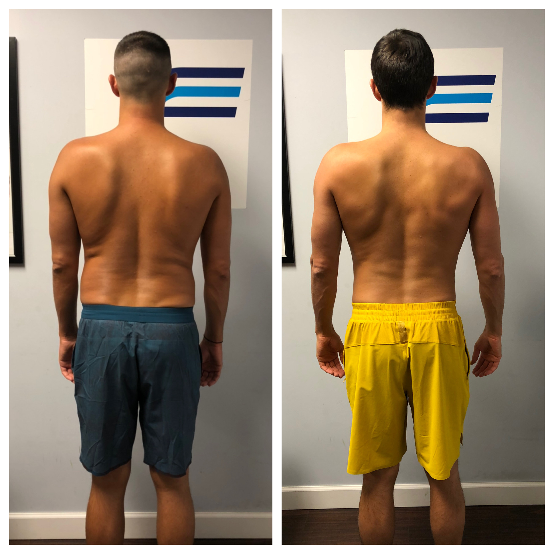Robbie Lehman - Fast & Fit Coaching - Before/After Back