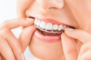 General Dentistry near McLean