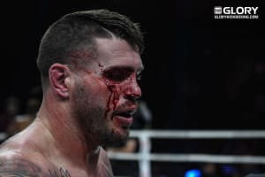 Almost time for the return of Chris Camozzi