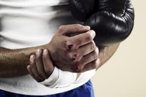 COMMON INJURIES IN MARTIAL ARTS: HANDS & ROTATOR CUFF, PART 1 OF 3
