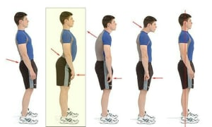 Do We Need Mobility or Stability to Fix an Excessive Back Arch AKA Lordosis?