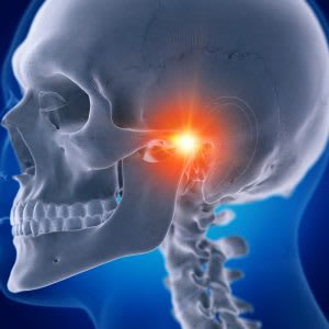 What is Temporomandibular Joint Disorder or TMD?