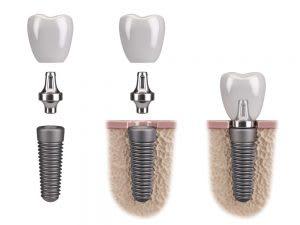 Three Reasons Why You Should Choose Dental Implants
