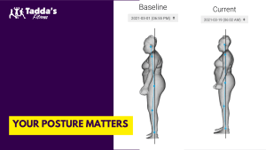 Your Posture Matters