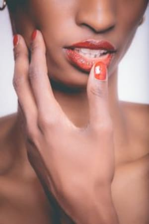 What are Canker Sores?