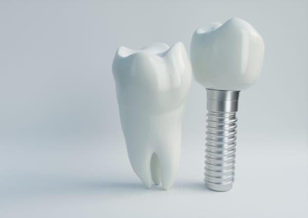 Preventive Dentistry near Aldie