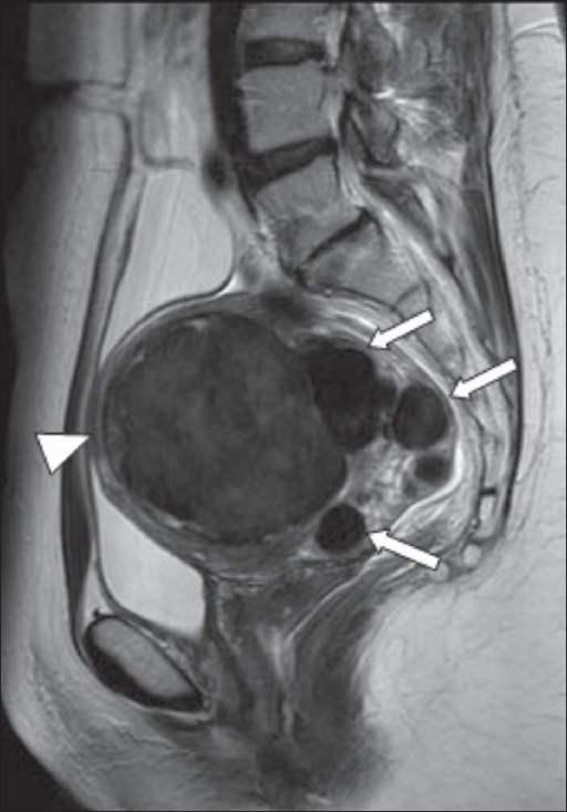 MRI menorrhagia. Sumber: anonim, Openi, 2009.