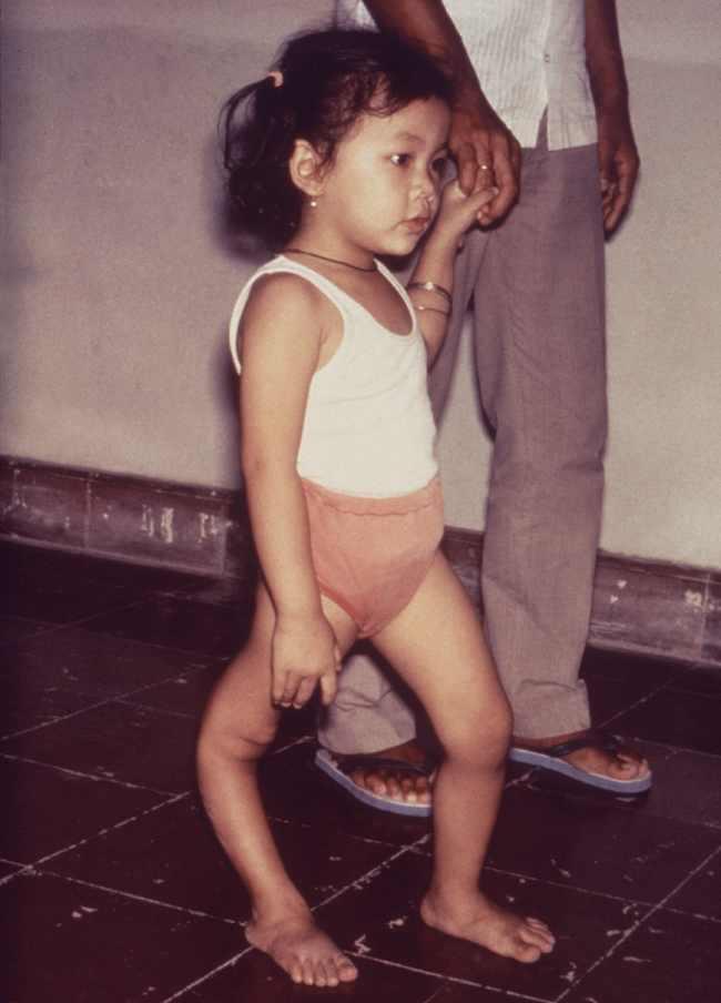 Polio. Sumber: anonim, PHIL CDC, 1995.