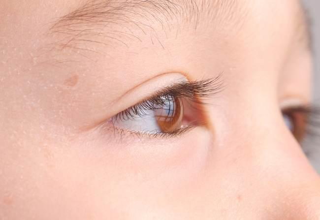 Masalah pada Mata Yang Umum Menimpa Bayi Bunda - Alodokter