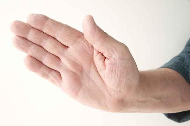 Telapak Tangan Sakit? Ini Kemungkinan Penyebabnya - Alodokter