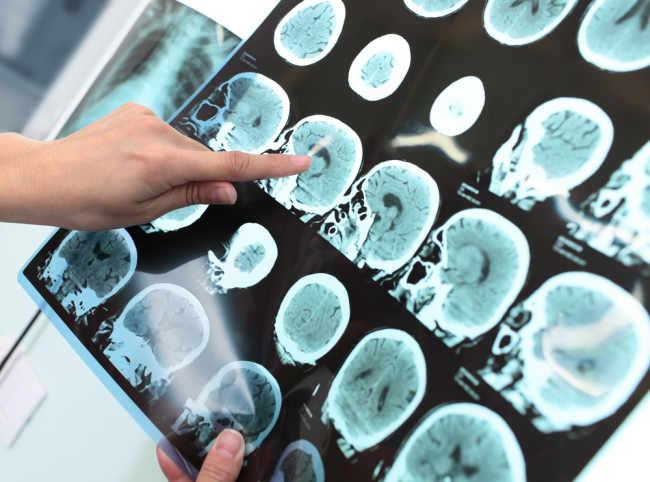 Cedera Tulang Tengkorak Bisa Berakibat Fatal - Alodokter