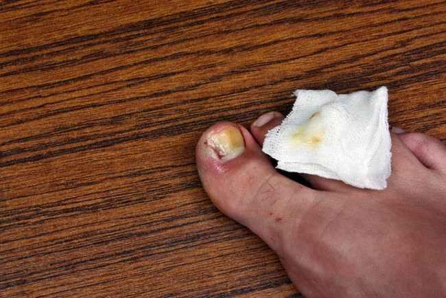 Obat Herbal Gangrene
