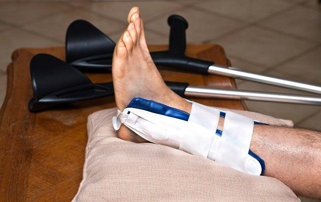 patah pergelangan kaki - Alodokter