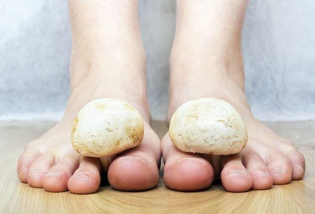 infeksi jamur-alodokter