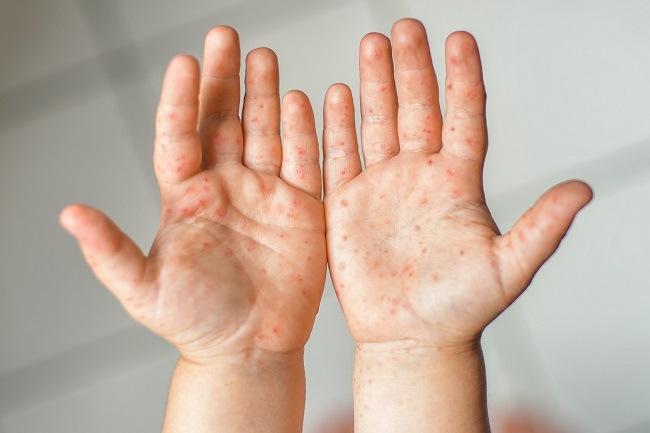 Penyakit Tangan Kaki Dan Mulut Gejala Penyebab Dan Mengobati Alodokter