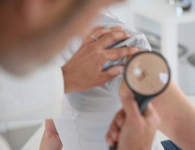 Racun Arsenik: Tidak Berwujud tapi Sangat Berbahaya