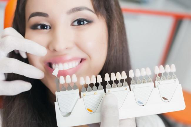 Fakta dan Cara Pemutihan Gigi - Alodokter