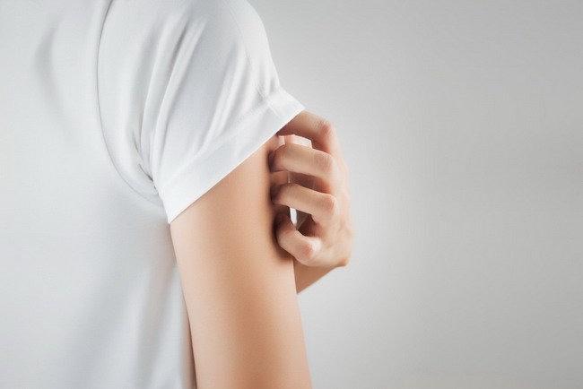 Pilihan Obat Dermatitis sesuai Kondisi Kulit - Alodokter