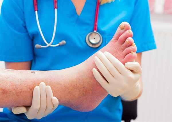 โรคเท้าช้าง