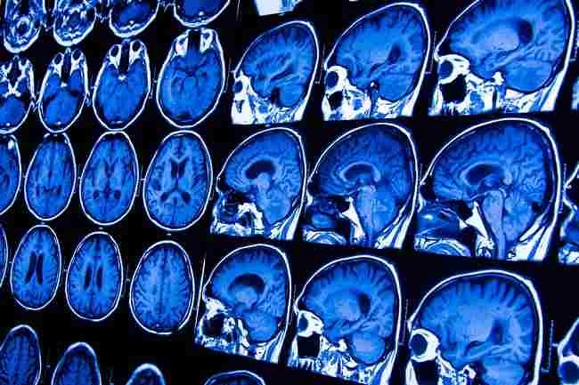 Cari Tahu Informasi tentang Batang Otak dan Masalahnya - Alodokter