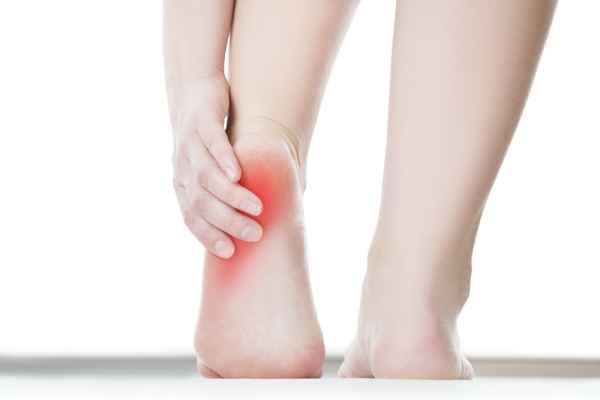 เจ็บส้นเท้า