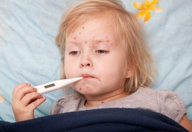 Meningitis Alodokter