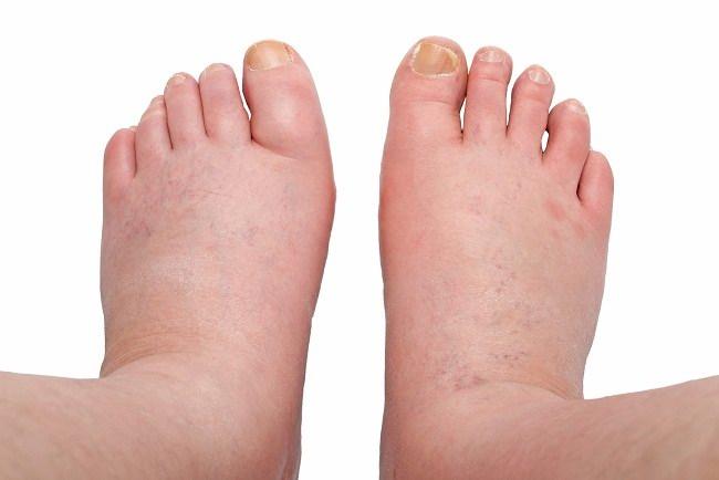 penyebab kaki bengkak dan cara mudah mengatasinya - alodokter