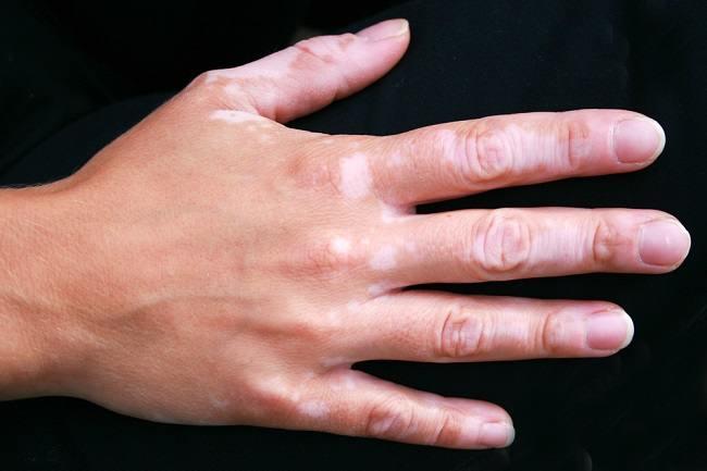 22++ Cara menghilangkan bekas luka gatal berwarna putih seperti panu trends
