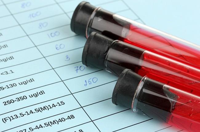 darah lengkap - alodokter