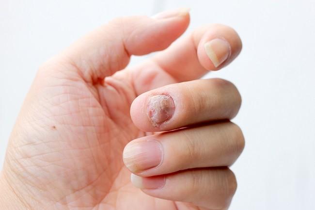 ketahui penyebab dan cara mengatasi kutu air di tangan - alodokter