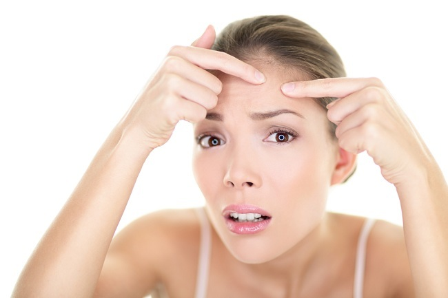 pimple on forehead - alodokter