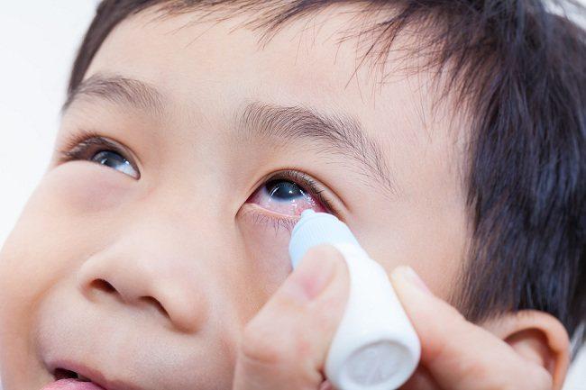 obat sakit mata merah untuk anak - alodokter