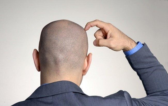 malu karena kepala botak coba transplantasi rambut - alodokter