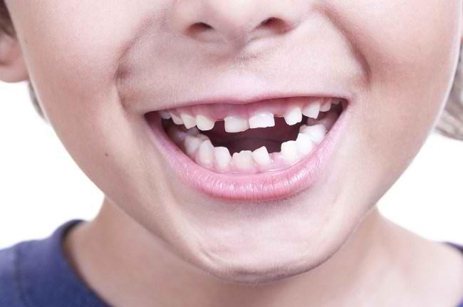 merawat kesehatan bayi dimulai dari gigi susu - alodokter