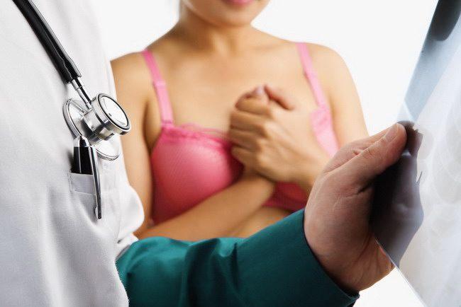 Tumor payudara-alodokter