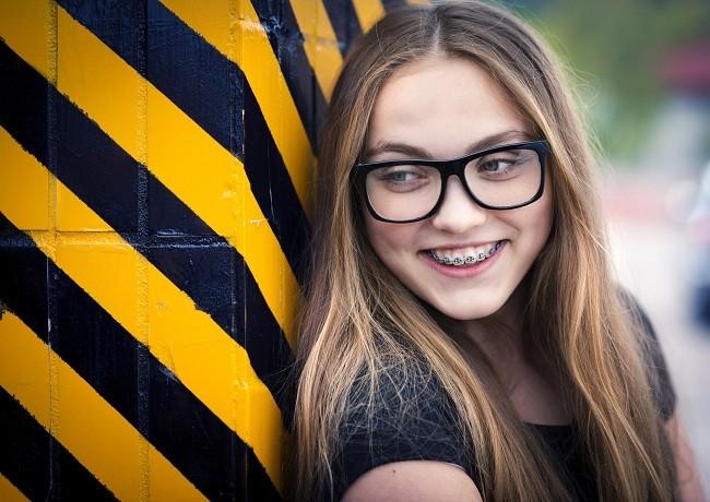 Kawat Gigi untuk Anak atau Dewasa - alodokter